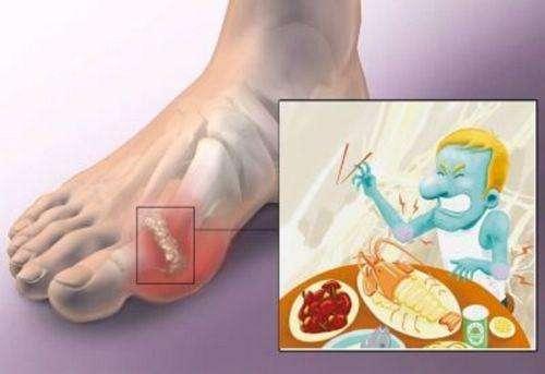痛风,高尿酸血症的诊断标准!