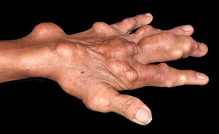 痛风怎么能治疗好?会不会遗传?